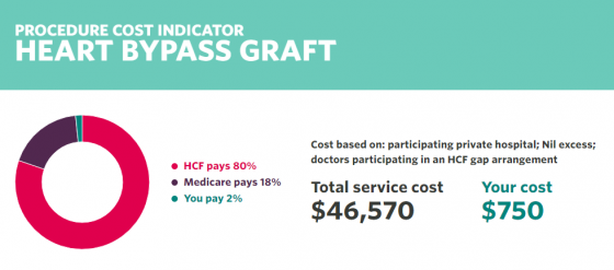 An indicative cost breakdown for a Heart Bypass Graft.