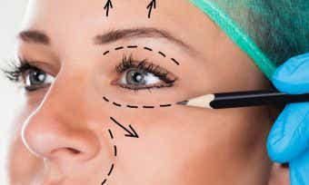 Health insurance & cosmetic surgery: Is it covered?