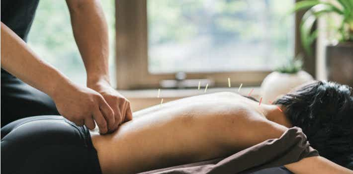 Acupuncture natural therapies reforms