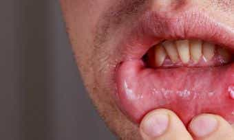 Mouth Ulcers: Painful Nuisance Or Something More Sinister?