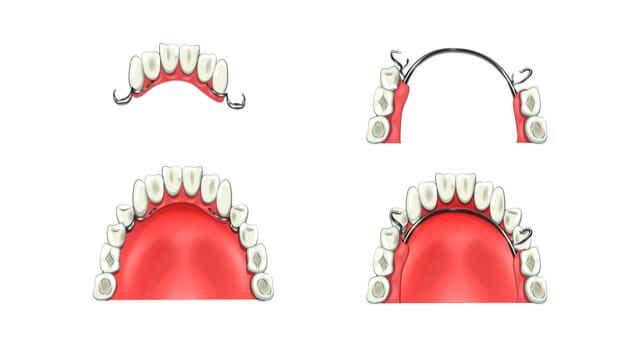 Partial Denture Cost