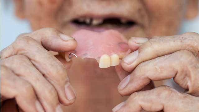 dentures woman