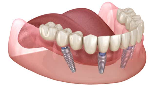 What Is An All-On-4 Implant?